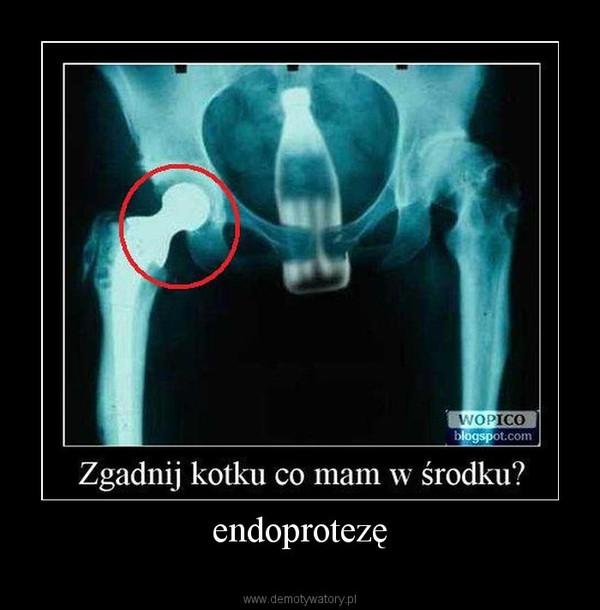endoprotezę –