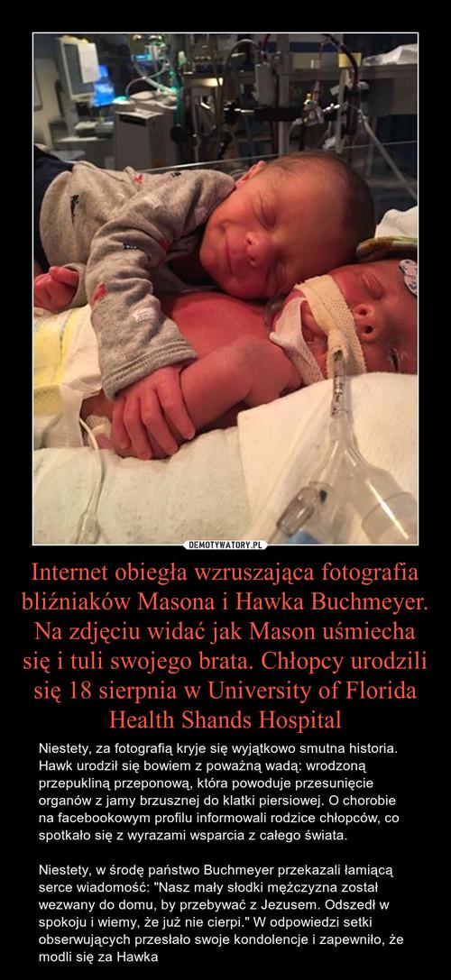 Internet obiegła wzruszająca fotografia bliźniaków Masona i Hawka Buchmeyer. Na zdjęciu widać jak Mason uśmiecha się i tuli swojego brata. Chłopcy urodzili się 18 sierpnia w University of Florida Health Shands Hospital