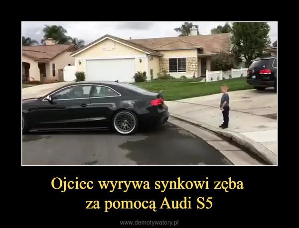 Ojciec wyrywa synkowi zęba za pomocą Audi S5 –