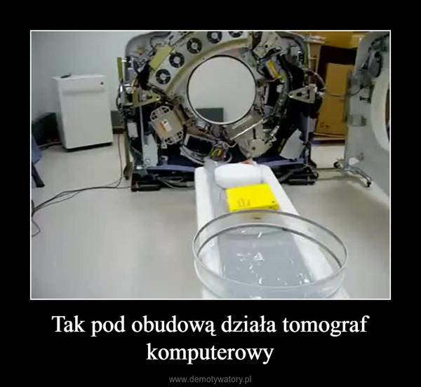 Tak pod obudową działa tomograf komputerowy –