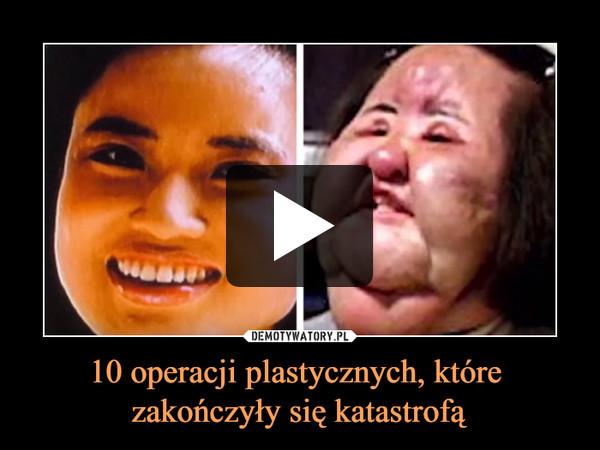 10 operacji plastycznych, które zakończyły się katastrofą –