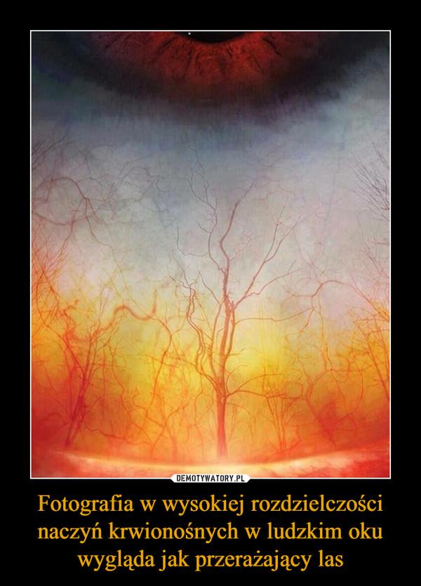 Fotografia w wysokiej rozdzielczości naczyń krwionośnych w ludzkim oku wygląda jak przerażający las –