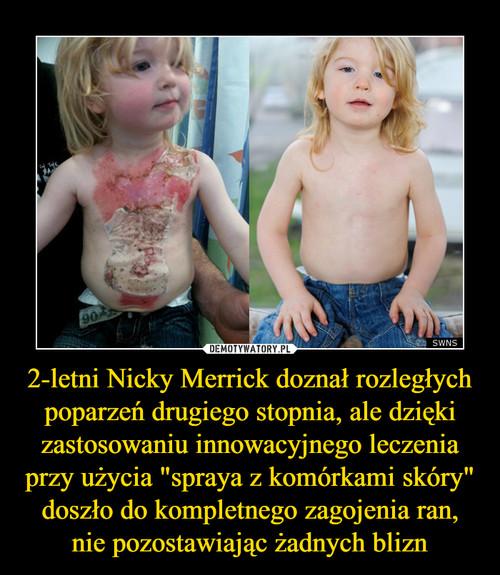 """2-letni Nicky Merrick doznał rozległych poparzeń drugiego stopnia, ale dzięki zastosowaniu innowacyjnego leczenia przy użycia """"spraya z komórkami skóry"""" doszło do kompletnego zagojenia ran, nie pozostawiając żadnych blizn"""