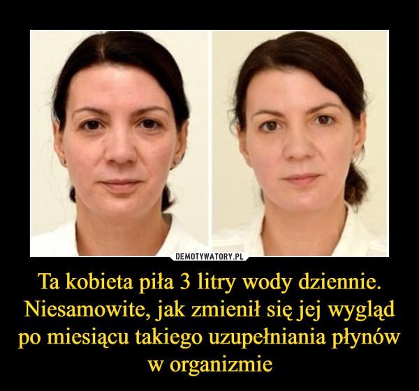 Ta kobieta piła 3 litry wody dziennie. Niesamowite, jak zmienił się jej wygląd po miesiącu takiego uzupełniania płynów w organizmie –