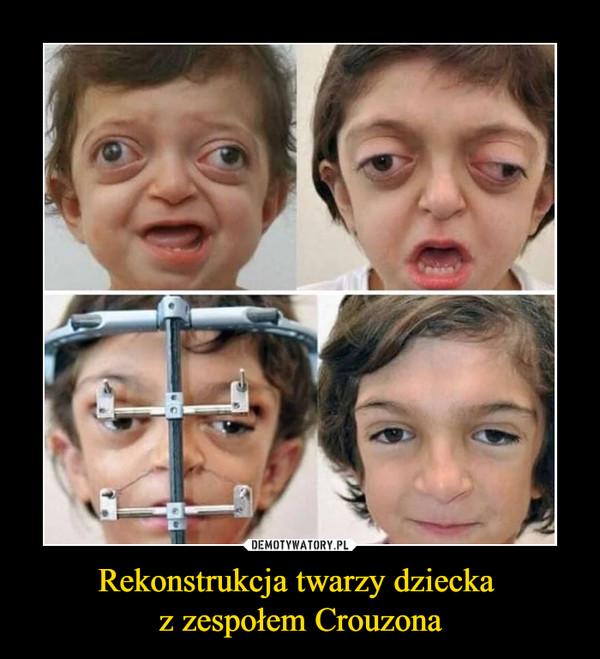 Rekonstrukcja twarzy dziecka z zespołem Crouzona –