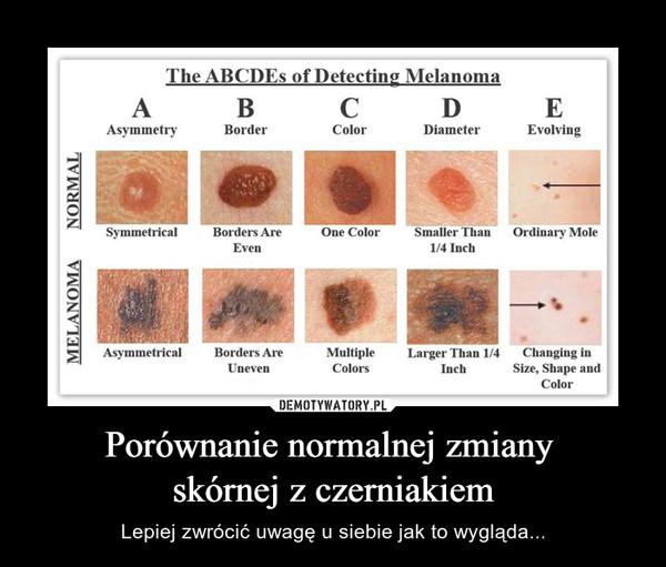 Porównanie normalnej zmiany skórnej z czerniakiem – Lepiej zwrócić uwagę u siebie jak to wygląda...